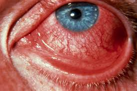 Болезнь глаз склер