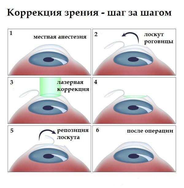 lazernaya-korrektsiya-zreniya-i-sindrom-suhogo-glaza-2