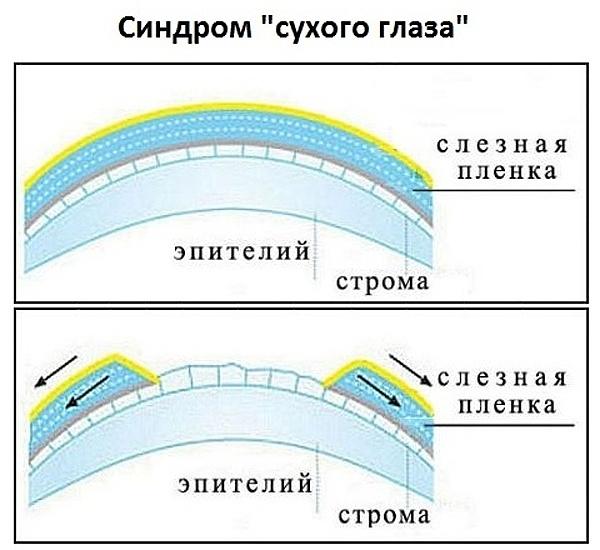 sindrom-suhogo-glaza-posle-operatsii
